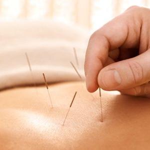 针灸治疗强直性脊柱炎43 作者: 来源: